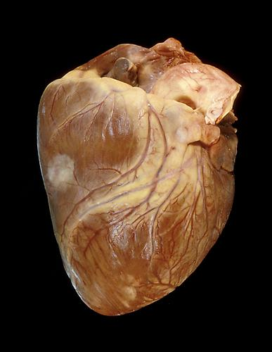 Angela Strassheim,  Cancer Heart  (Detail from  Hearts ) Archival pigment ink print mounted on light box 8 x 10 inches Edition of 8