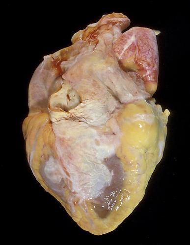 Angela Strassheim,  Fatty Oversized Heart  (Detail from  Hearts ) Archival pigment ink print mounted on light box 8 x 10 inches Edition of 8