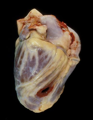 Angela Strassheim,  Shot in the Heart  (Detail from  Hearts ) Archival pigment ink print mounted on light box 8 x 10 inches Edition of 8