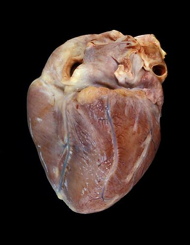 Angela Strassheim,  Teenage Drug Overdose Heart  (Detail from  Hearts ) Archival pigment ink print mounted on light box 8 x 10 inches Edition of 8