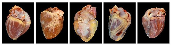 Angela Strassheim,   Hearts  , 2007 - 2011 Archival pigment ink print mounted on light box Set of 5 8 x 10 inches each Edition of 8