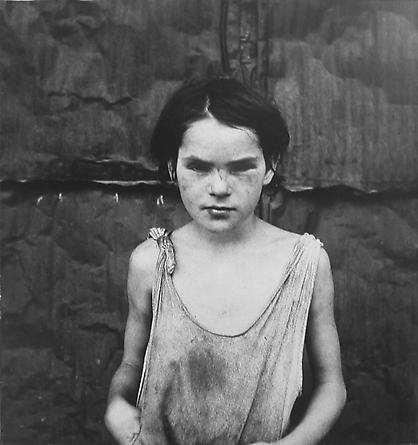 Damaged Child, Shacktown, Elm Grove, Oklahoma, 1936