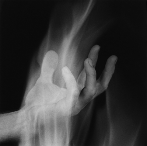 <i>Hand in Fire</i>, 1985