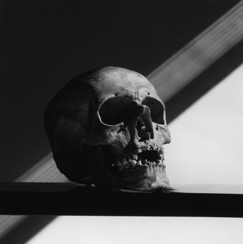 &lt;i&gt;Skull&lt;/i&gt;, 1988