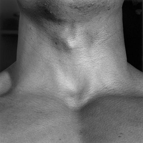 &lt;i&gt;Neck/Livingston&lt;/i&gt;, 1988