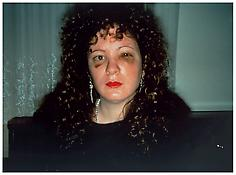 <i>Nan one month after being battered</i> 1984 Cibachrome 30 x 40 inches; 76 x 102 cm