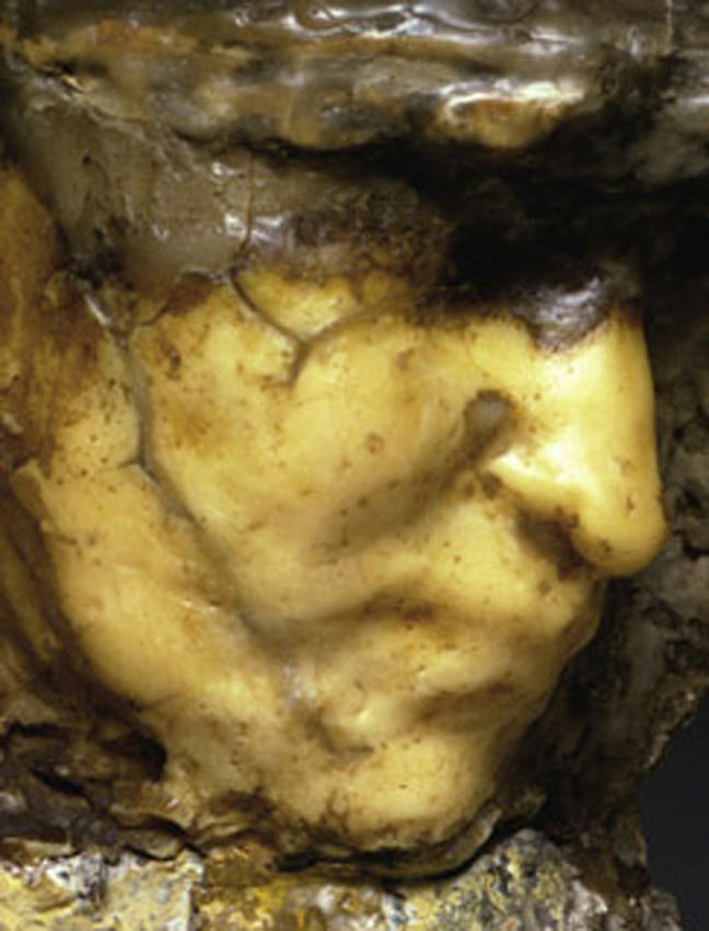 Medardo Rosso<br />[detail] Carne altrui   <br />1883<br />wax over plaster with pigment<br />9 1/4 x 8 3/4 x 6 3/4 inches<br />  (23.5 x 22.9 x 16 cm)<br />