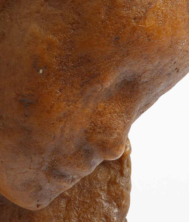 Medardo Rosso<br />[detail] Bambino malato<br />c. 1895<br />wax over plaster<br />6 3/4 x 5 7/8 x 10 inches<br />(17 x 15 x 25.5 cm)<br />in it's original vitrine 15 7/8 x 10 x 15 5/8 inches<br />(40.5 x 25.5 x 38.5 cm)<br />